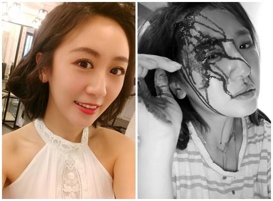 女星头被砸伤先自拍 晒血流满面照被网友骂翻